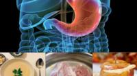 Acidez de estomago: La dieta adecuada es la base del tratamiento