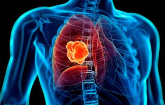El 90 % de pacientes con cáncer de pulmón mueren debido a la detección tardía